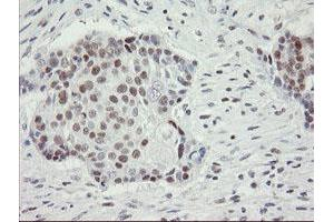 Image no. 13 for anti-Replication Factor C (Activator 1) 2, 40kDa (RFC2) (AA 1-234) antibody (ABIN1490616)