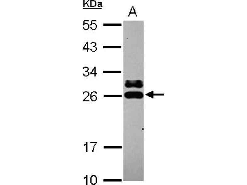 Western Blotting (WB) image for anti-Glutathione S-Transferase kappa 1 (GSTK1) (AA 1-181) antibody (ABIN558375)