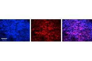 Image no. 3 for anti-MYC Associated Factor X (MAX) (Middle Region) antibody (ABIN2780421)