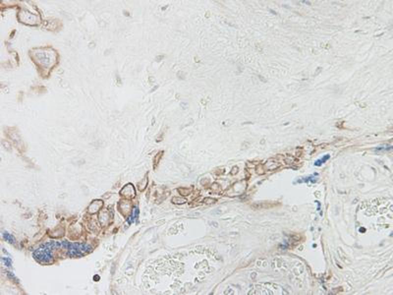image for anti-Interleukin 15 (IL15) antibody (ABIN464930)