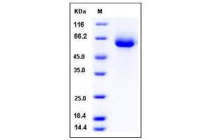 Image no. 1 for Vanin 2 (VNN2) (AA 1-492) protein (His tag) (ABIN2004731)