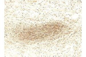 Immunohistochemistry (IHC) image for anti-MMP2 Antikörper (Matrix Metalloproteinase 2) (Internal Region) (ABIN268224)