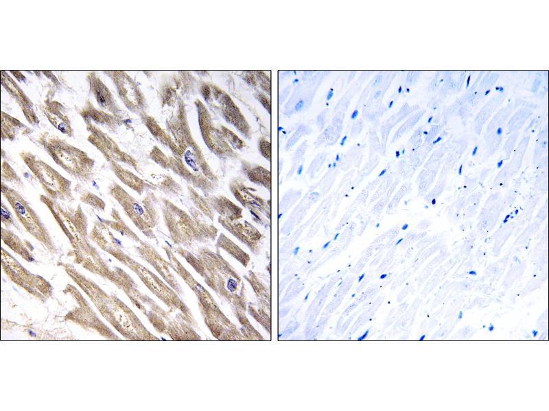Image no. 1 for anti-Coagulation Factor 13, B Polypeptide (F13B) antibody (ABIN1576408)