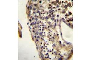 Image no. 2 for anti-KH Domain Containing 3-Like, Subcortical Maternal Complex Member (KHDC3L) (AA 27-56), (N-Term) antibody (ABIN952017)