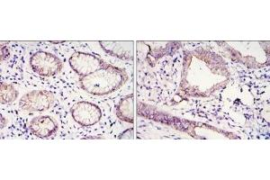 Immunohistochemistry (Paraffin-embedded Sections) (IHC (p)) image for anti-Cadherin 1, Type 1, E-Cadherin (Epithelial) (CDH1) antibody (ABIN4306576)
