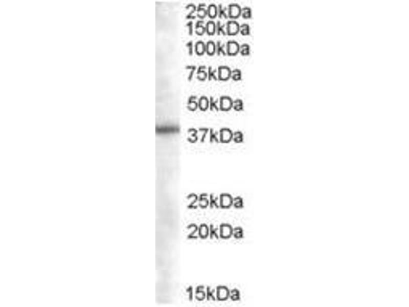 image for anti-Sorting Nexin 16 (SNX16) (N-Term) antibody (ABIN374316)