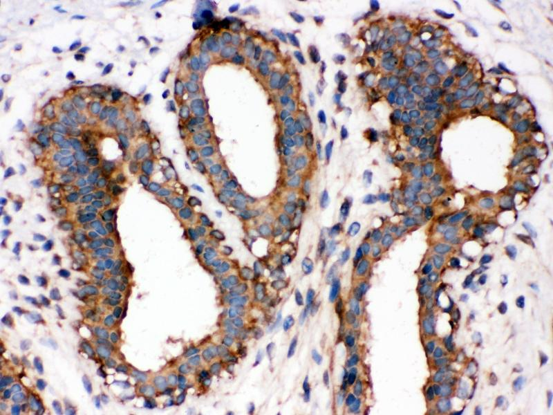 Immunohistochemistry (IHC) image for anti-Nuclear Factor-KB P65 (NFkBP65) (AA 143-158), (Middle Region) antibody (ABIN3044253)
