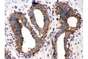 Image no. 1 for anti-Nuclear Factor-KB P65 (NFkBP65) (AA 143-158), (Middle Region) antibody (ABIN3044253)