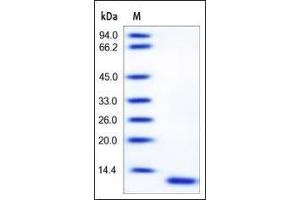 Image no. 1 for S100 Calcium Binding Protein A6 (S100A6) (AA 1-90) protein (ABIN2181717)