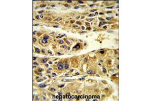 Image no. 3 for anti-Alcohol Dehydrogenase 6 (Class V) (ADH6) (AA 209-240) antibody (ABIN5535505)