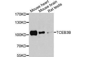 Image no. 1 for anti-Transcription Elongation Factor B Polypeptide 3B (Elongin A2) (TCEB3B) antibody (ABIN6571795)