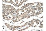Immunohistochemistry (IHC) image for anti-Complement Component 1, Q Subcomponent, B Chain (C1QB) (C-Term) antibody (ABIN2773842)