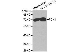 Image no. 1 for anti-phosphoenolpyruvate Carboxykinase 1 (Soluble) (PCK1) antibody (ABIN3022754)