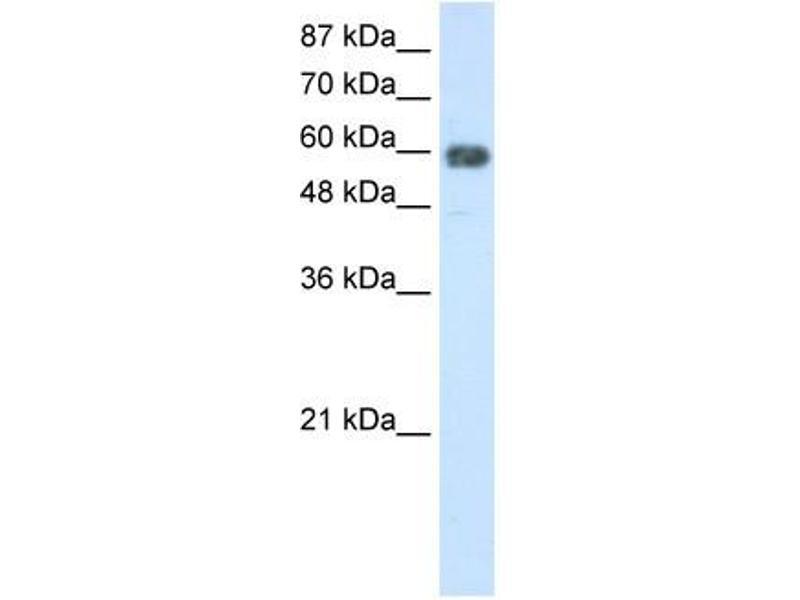 Image no. 2 for anti-TROVE Domain Family, Member 2 (TROVE2) (N-Term) antibody (ABIN629945)
