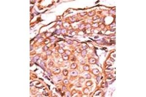 image for anti-C-JUN antibody (Jun Proto-Oncogene) (pSer63) (ABIN358110)