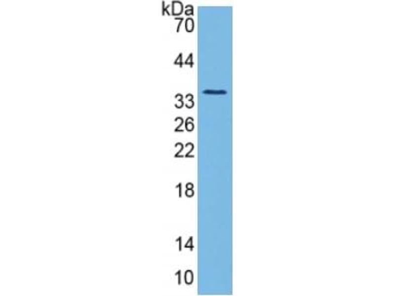 Pancreas Specific Transcription Factor, 1a (PTF1A) ELISA Kit (4)