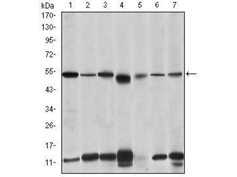 Western Blotting (WB) image for anti-Interleukin-1 Receptor-Associated Kinase 4 (IRAK4) antibody (ABIN4880340)