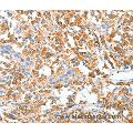 Immunohistochemistry of Human thyroid cancer using CLIP1 Polyclonal Antibody at dilution of 1:20