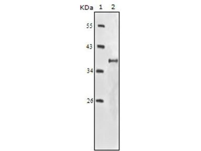 Western Blotting (WB) image for anti-Insulin-Like Growth Factor 1 Receptor (IGF1R) antibody (ABIN1106090)
