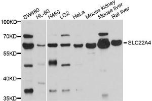 Image no. 1 for anti-Solute Carrier Family 22 Member 4 (SLC22A4) antibody (ABIN6566954)
