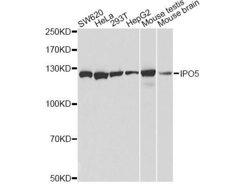 Image no. 2 for anti-Importin 5 (IPO5) antibody (ABIN6569027)