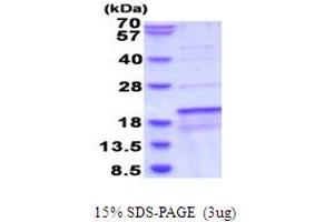 Image no. 1 for Succinate Dehydrogenase Complex Assembly Factor 1 (SDHAF1) (AA 1-115) protein (His tag) (ABIN6387510)