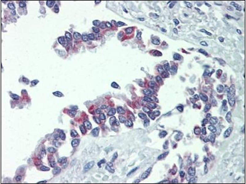 Immunohistochemistry (Paraffin-embedded Sections) (IHC (p)) image for anti-BCL2-Antagonist/killer 1 (BAK1) (AA 1-14), (N-Term) antibody (ABIN615464)