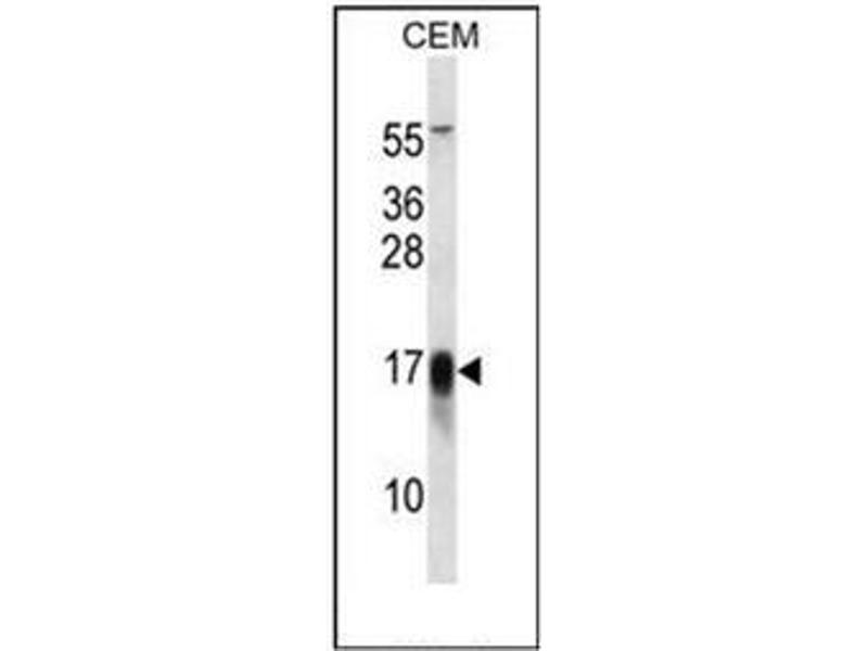 Western Blotting (WB) image for anti-FXYD Domain Containing Ion Transport Regulator 5 (FXYD5) (AA 70-100), (Middle Region) antibody (ABIN952009)