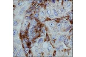 Immunohistochemistry (IHC) image for anti-Integrin alpha M (ITGAM) (AA 250-350), (Internal Region) antibody (ABIN409930)