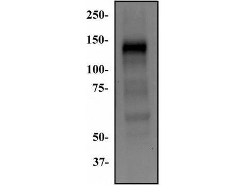 Western Blotting (WB) image for anti-Fibroblast Growth Factor Receptor 1 (FGFR1) (Isoform alpha) antibody (ABIN268017)