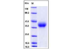 Image no. 1 for CD84 (CD84) (AA 1-221), (Extracellular Domain) (Active) protein (His tag) (ABIN2008279)
