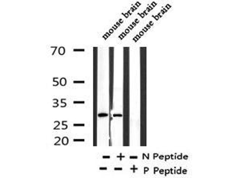 Image no. 1 for anti-Myristoylated Alanine-Rich Protein Kinase C Substrate (MARCKS) (pSer170) antibody (ABIN6269993)