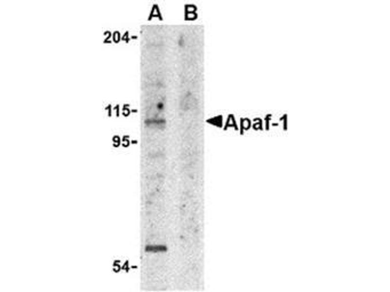 image for anti-APAF1 antibody (Apoptotic Peptidase Activating Factor 1) (AA 12-28) (ABIN319003)