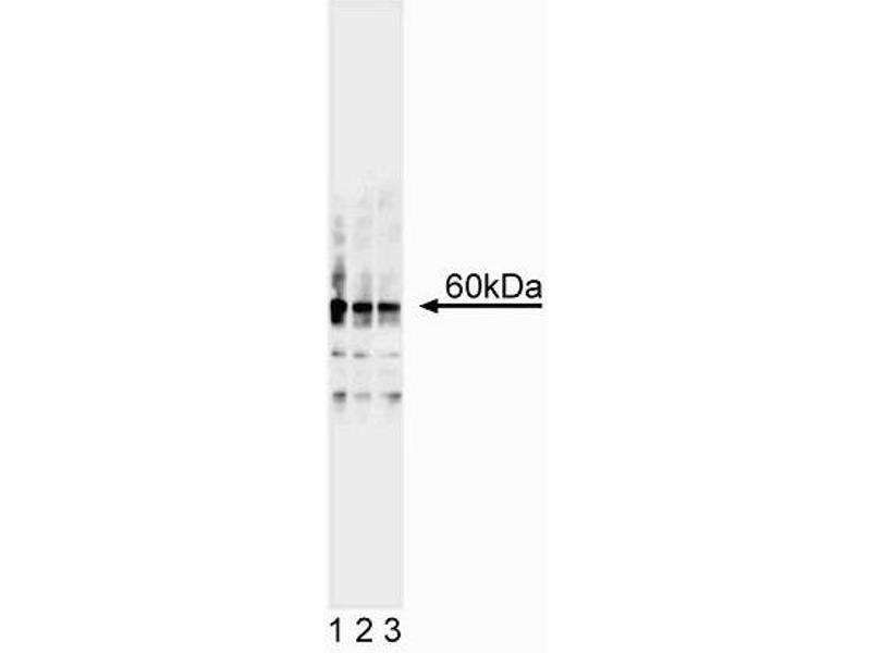 Western Blotting (WB) image for anti-E2F2 antibody (E2F Transcription Factor 2) (ABIN967548)