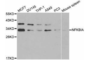 Western Blotting (WB) image for anti-Nuclear Factor of kappa Light Polypeptide Gene Enhancer in B-Cells Inhibitor, alpha (NFKBIA) antibody (ABIN5998337)