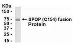 Western Blotting (WB) image for anti-Speckle-Type POZ Protein (SPOP) (AA 221-374) antibody (ABIN2468040)