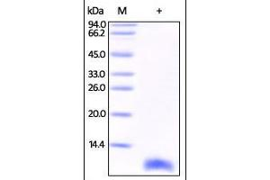 Image no. 1 for S100 Calcium Binding Protein B (S100B) (AA 1-92) protein (His tag) (ABIN2181721)