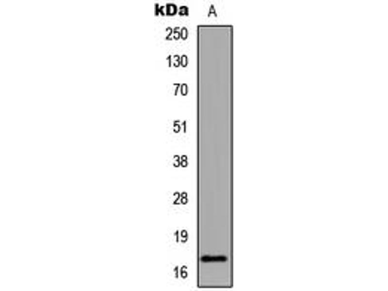 Image no. 3 for anti-Histone 3 (H3) (H3K18ac) antibody (ABIN2707560)