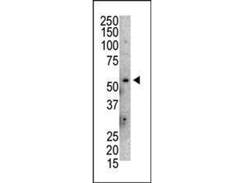 Western Blotting (WB) image for anti-MDM2 Antikörper (Mdm2, p53 E3 Ubiquitin Protein Ligase Homolog (Mouse)) (AA 393-424) (ABIN388068)