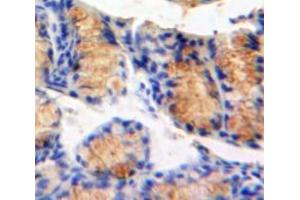 Image no. 2 for anti-Mitogen-Activated Protein Kinase Kinase Kinase Kinase 5 (MAP4K5) (AA 9-231) antibody (ABIN1859750)