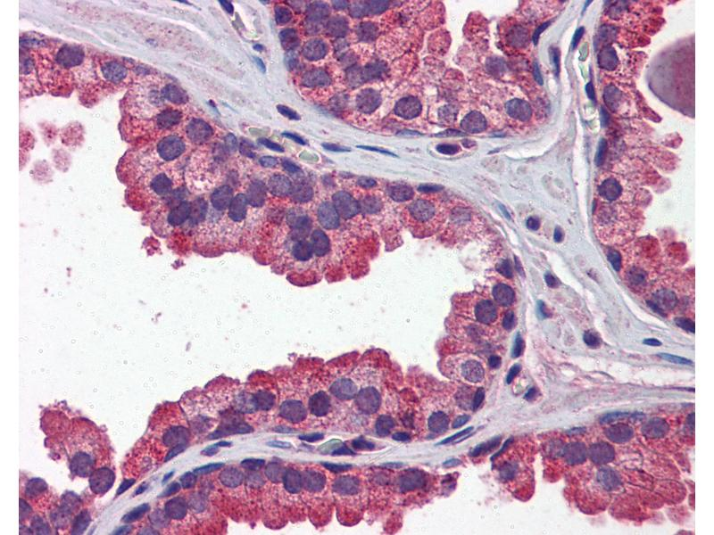 Immunohistochemistry (IHC) image for anti-Wingless-Type MMTV Integration Site Family, Member 3A (WNT3A) (N-Term) antibody (ABIN769013)