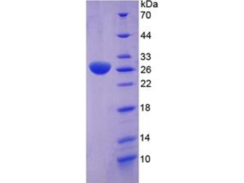 Clusterin (CLU) ELISA Kit (2)