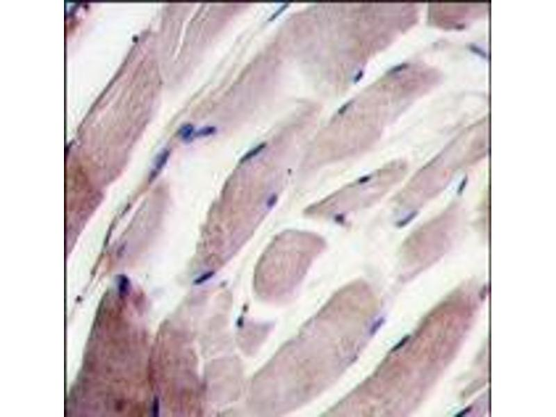 Immunohistochemistry (Paraffin-embedded Sections) (IHC (p)) image for anti-Mitogen-Activated Protein Kinase 12 (MAPK12) (C-Term) antibody (ABIN359646)