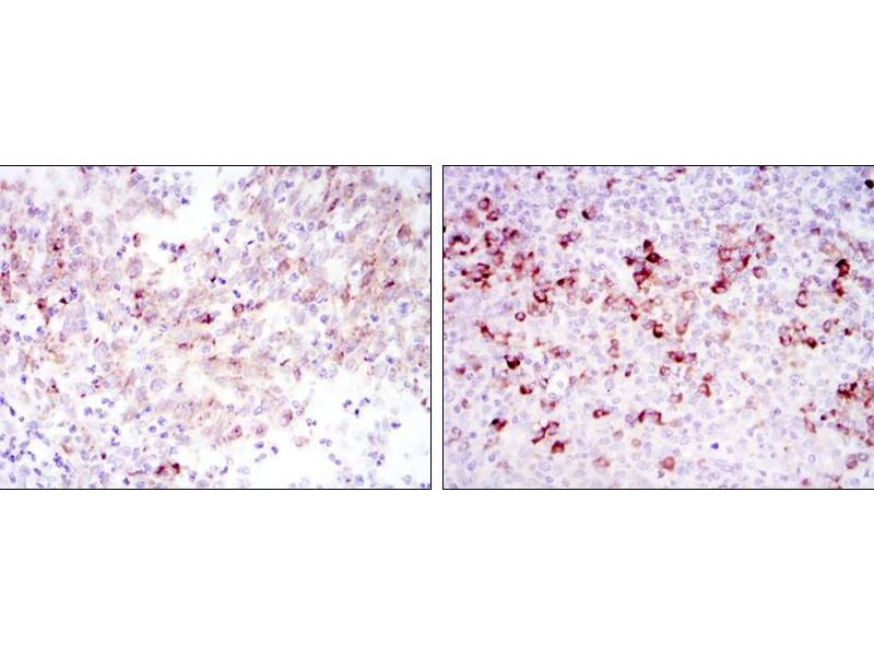 Immunohistochemistry (IHC) image for anti-Cortactin antibody (CTTN) (ABIN969073)