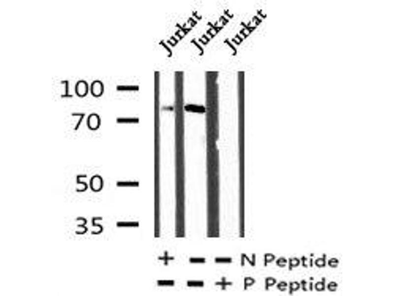Western Blotting (WB) image for anti-Fibroblast Growth Factor Receptor 4 (FGFR4) (pTyr642) antibody (ABIN6269937)