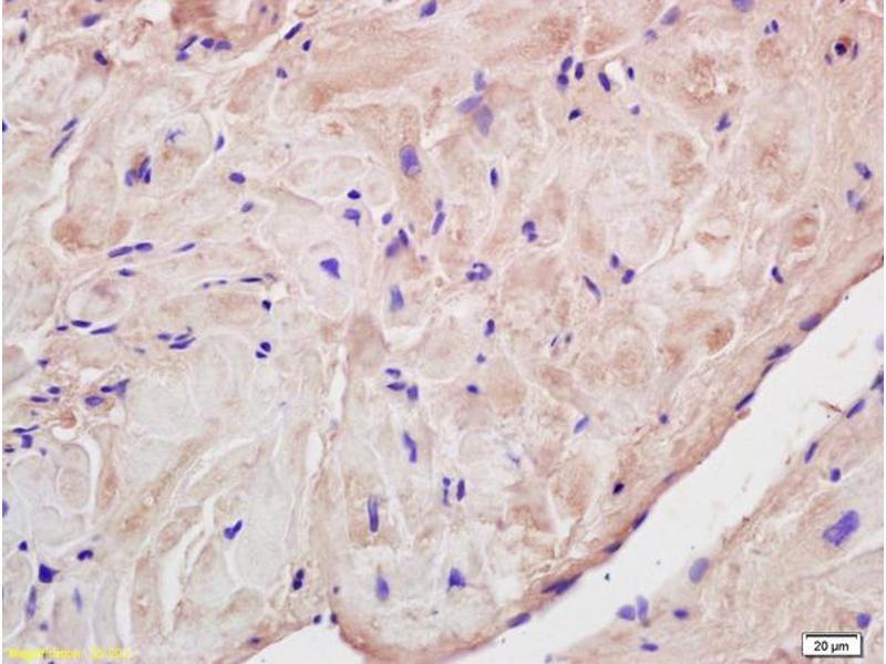 Immunohistochemistry (IHC) image for anti-Corin, Serine Peptidase (CORIN) (AA 207-248) antibody (ABIN872360)