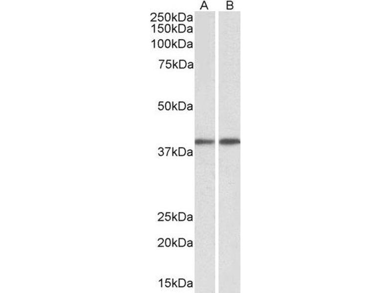 Western Blotting (WB) image for anti-Guanine Nucleotide Binding Protein (G Protein), Q Polypeptide (GNAQ) (AA 162-175) antibody (ABIN2562862)