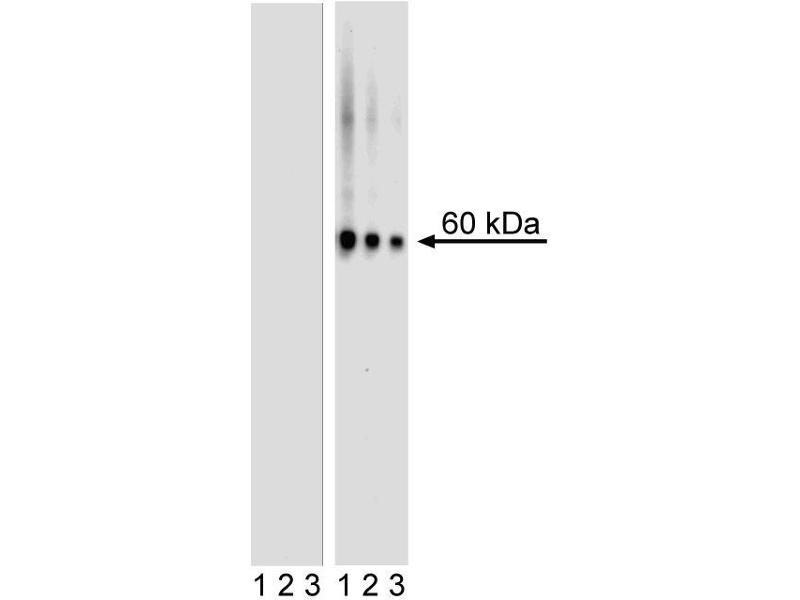 Western Blotting (WB) image for anti-V-Akt Murine Thymoma Viral Oncogene Homolog 1 (AKT1) (pSer473) antibody (ABIN967668)