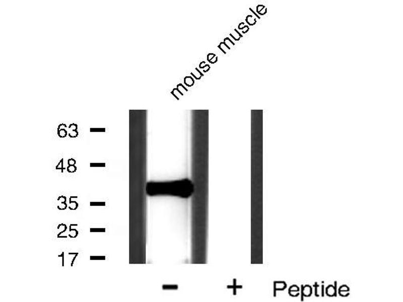 Western Blotting (WB) image for anti-Nuclear Factor of kappa Light Polypeptide Gene Enhancer in B-Cells Inhibitor, alpha (NFKBIA) antibody (ABIN6262504)