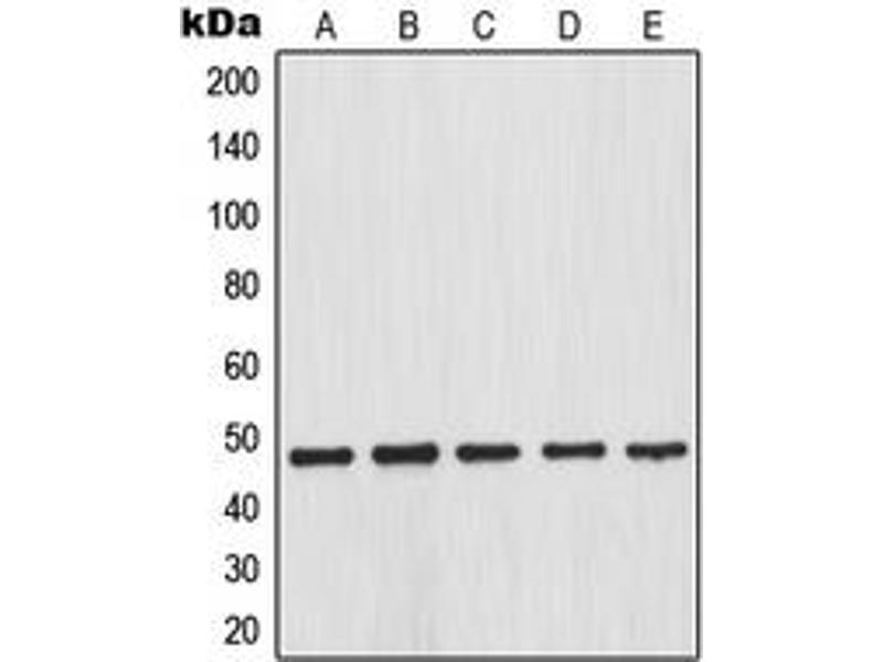 Western Blotting (WB) image for anti-Inhibitor of kappa Light Polypeptide Gene Enhancer in B-Cells, Kinase beta (IKBKB) (N-Term), (pSer23) antibody (ABIN2707591)